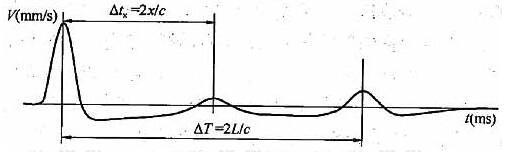 图4 缺陷桩典型时域信号特征